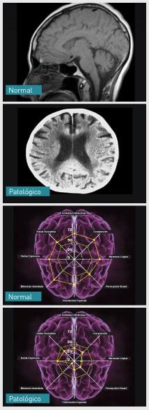 Evaluación del Rendimiento Cerebral: funciones ejecutivas